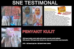 testimonial-sne-kapsul-penyakikulit